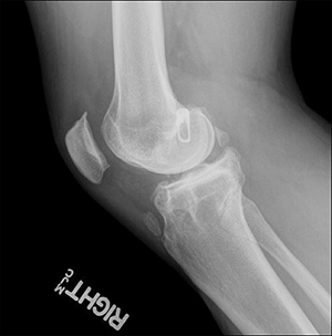 BLOG: Hardware complications in revision ACL reconstruction take careful consideration