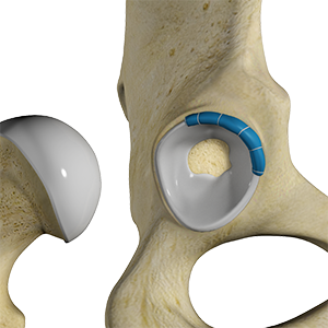 Hip Labrum Surgery: Is It The Right Treatment?