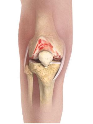 Osteoarthritis research: Hot mud and salt baths