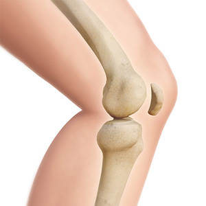 Cause of bone loss in joint implant patients uncovered in new study