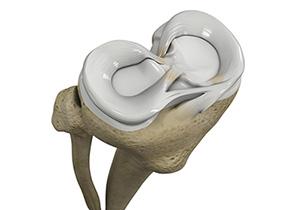 KU researcher studies how estrogen may protect menisci between thighbone and shinbone